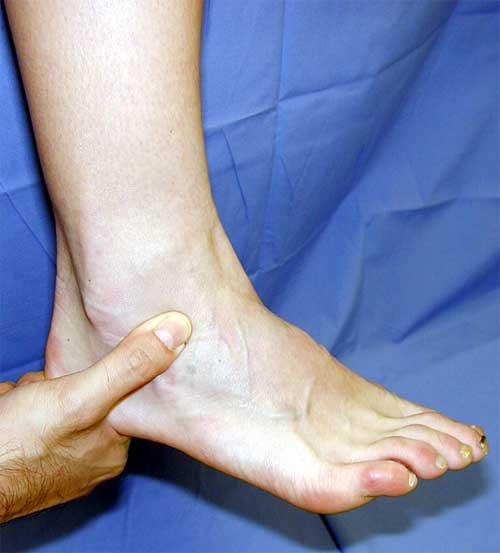 опухла нога в районе голеностопного сустава фото